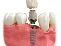 Dental_implants_reseda_tarzana_ca